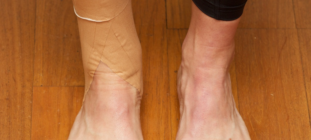 Sprained Ankle Trail running Trail running injuries ultra run Australia Shona Stephenson